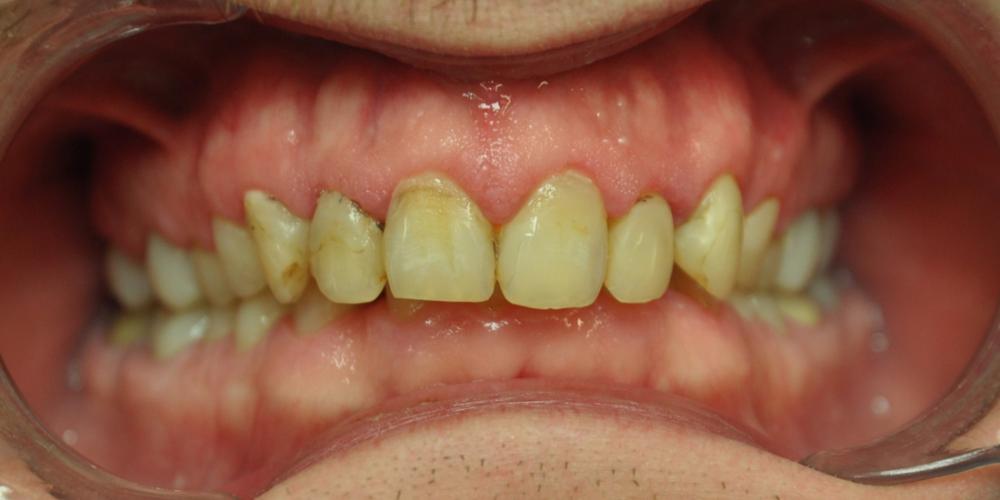 Замена множественных реставраций на зубах фронтальной группы на частичные коронки E-max