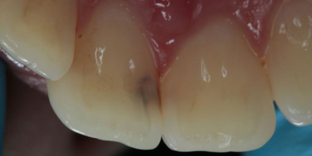 Лечение кариеса на фронтальных зубах с  использованием дентального микроскопа