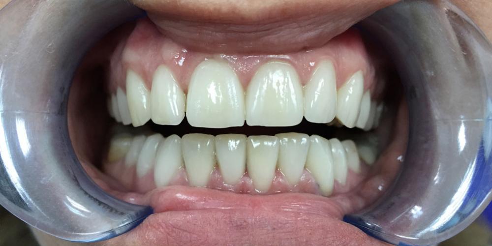 Установка виниров на зубы верхней и нижней челюсти