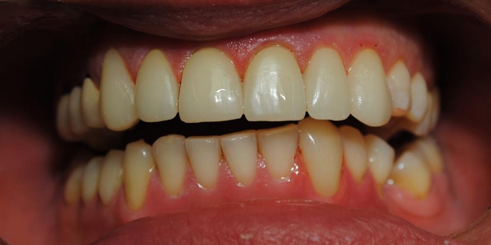 Заменены композитные реставрации на зубах фронтальной группы