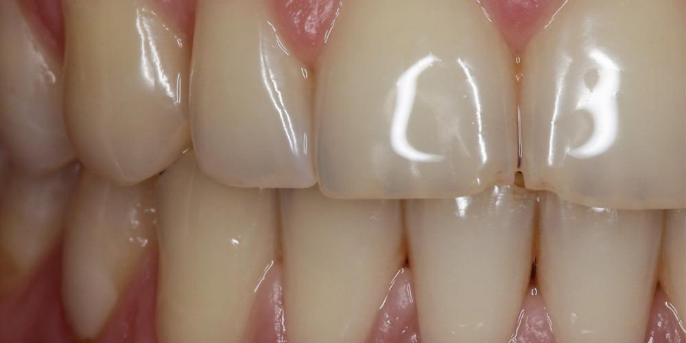 Отбеливание зубов системой отбеливания Zoom 3