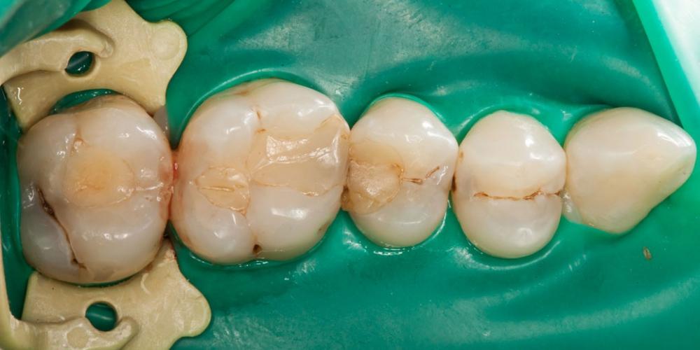 Фото до лечения Лечение кариеса (беспокоило застревание пищи между зубами)