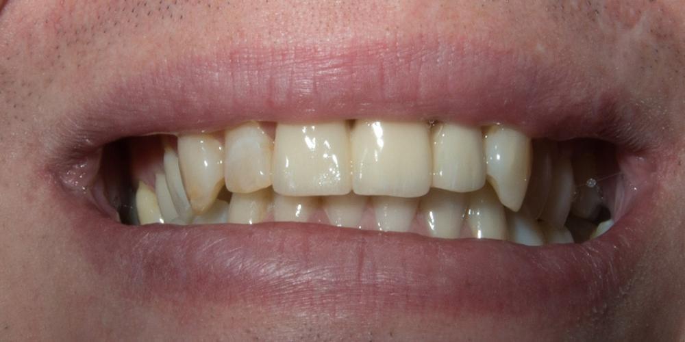 Фотография после лечения и установки гипоаллергенного моста из диоксида циркония. Установка моста из диоксида циркония на передние зубы