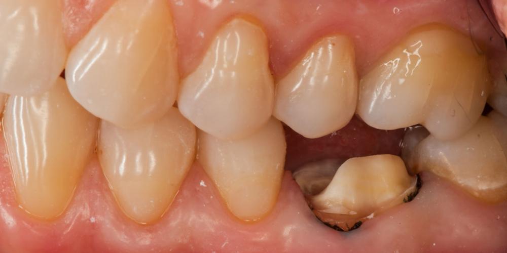 Наглядное фото без коронки зуба Восстановление зуба цельнокерамической коронкой смоделированной в 3D