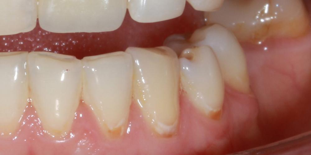 До лечения Лечение кариеса в зоне линии улыбки
