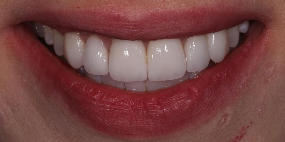Виниры для придания эстетики передним зубам