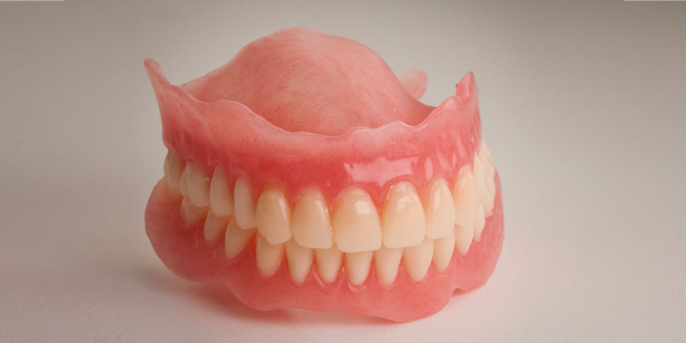 Восстановление прикуса полными съемными протезами при отсутствии всех зубов