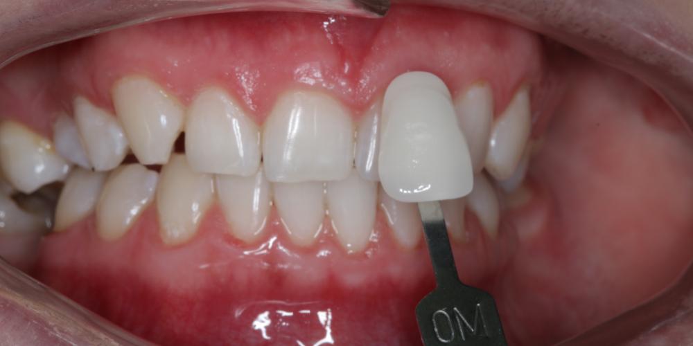 Результат отбеливания зубов ZOOM-4 с A1 до 0M