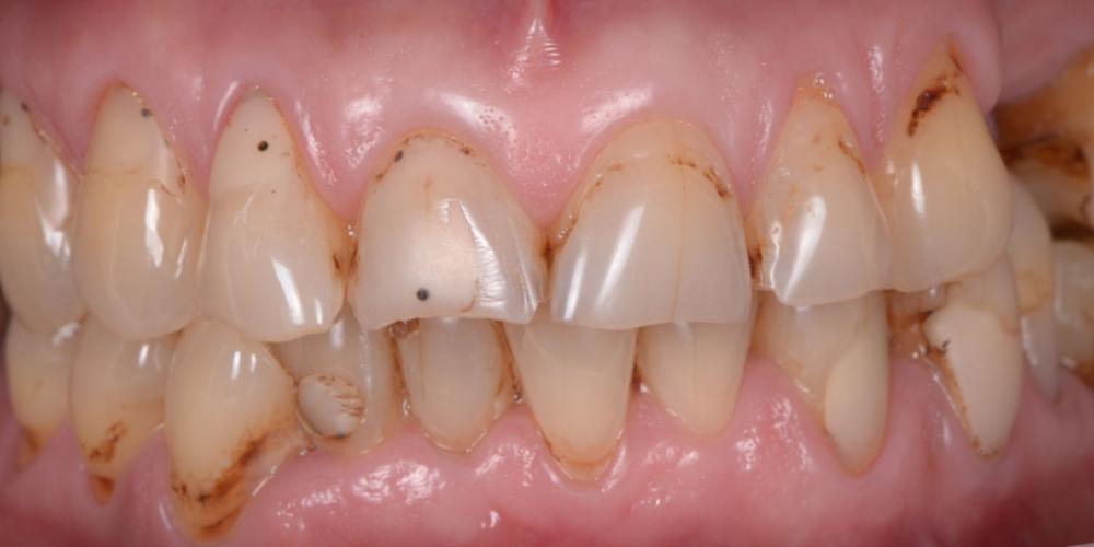 До лечения. Тотальная стоматологическая реабилитация пациента: 6 дентальных имплантов, 28 керамических виниров