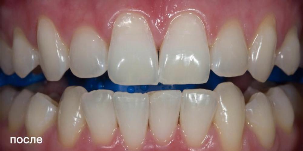 Фото после отбеливания зубов ZOOM 4. Фотографии отбеливания зубов по технологии ZOOM-4