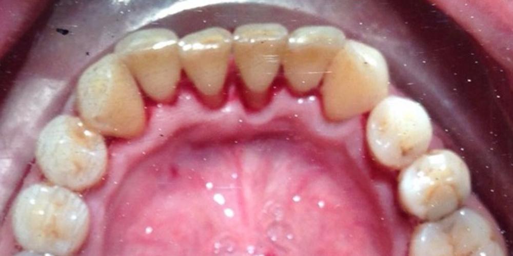 После профессиональной чистки зубов. Устранение зубных отложений, кровоточивости и воспаления дёсен