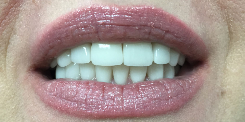 Комплексная реабилитация улыбки коронками на основе диоксида циркония и керамическими винирами