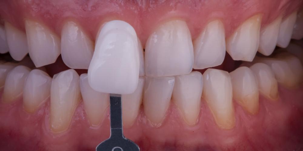Результат отбеливания зубов. Отбеливание зубов безопасно