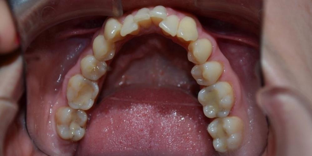 Результат исправления кривых зубов с помощью брекетов