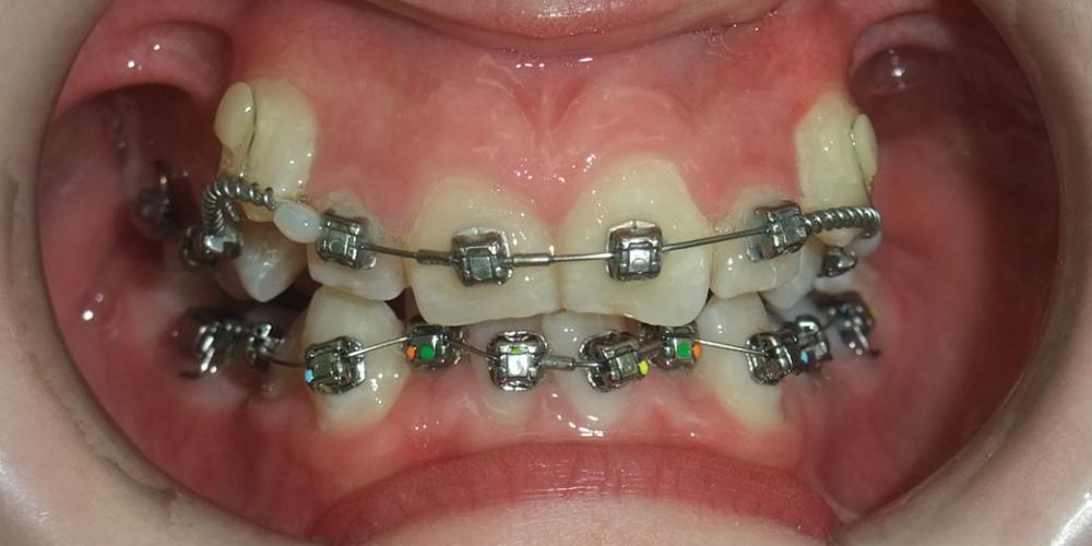 Исправление скрученного положения зубов верхнего и нижнего зубного ряда