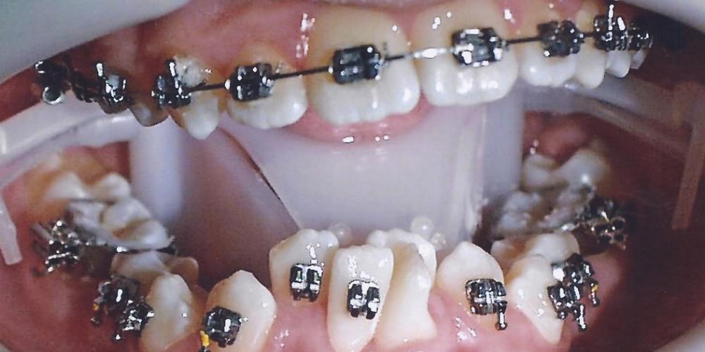 Фото сразу после установки брекет систем. Результат исправления скрученности зубов металлическими брекетами