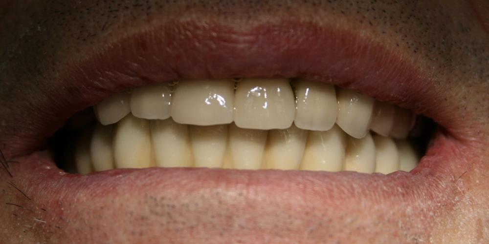 Полное протезирование мостовидными протезами с винтовой фиксацией на имплантатах Dentium