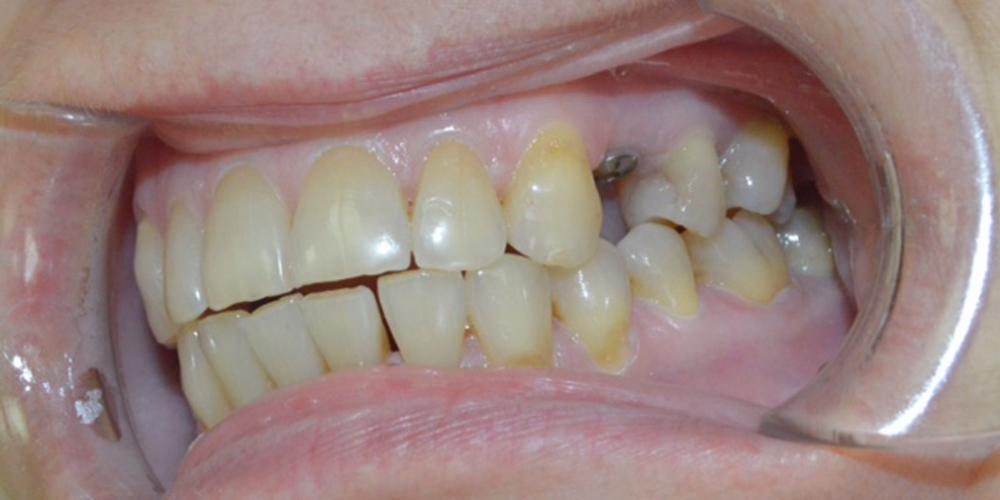 Фото прижившегося имплантата с формирователем десны. Удаление зуба с одномоментной имплантацией Астра Тек