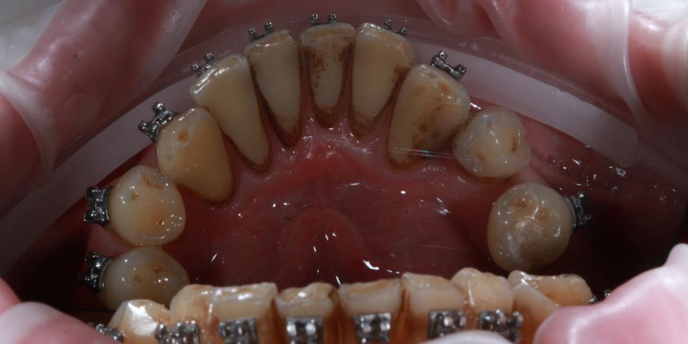 Профессиональная гигиена полости рта в процессе ортодонтического лечения