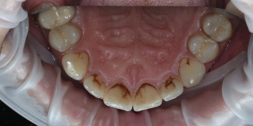 Профессиональна гигиена полости рта + чистка Air-Flow