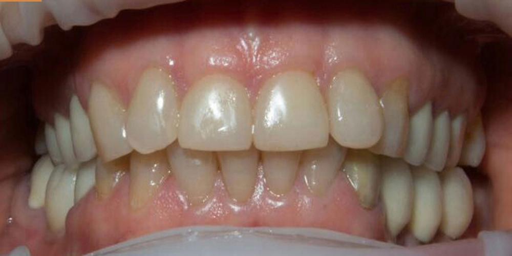 Установка виниров на передние зубы верхней и нижней челюсти