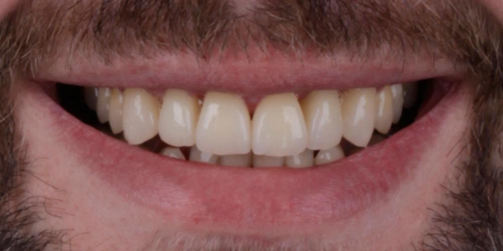 Результат лечения. Эстетическое протезирование передних верхних зубов с предварительным исправлением прикуса и импланта