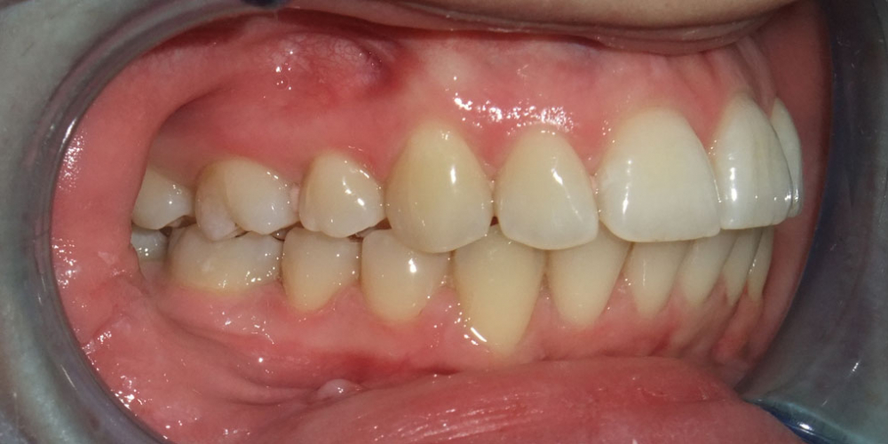 Результат исправления прикуса с помощью лингвальной брекет-системы на верхней челюсти