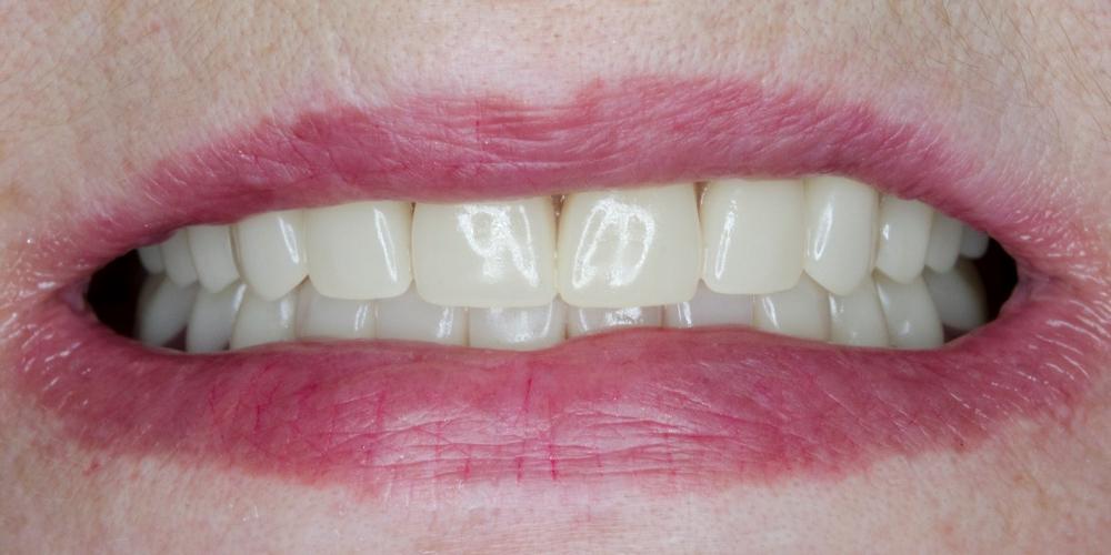 Полное съёмное протезирование верхней и нижней челюсти акриловым протезом