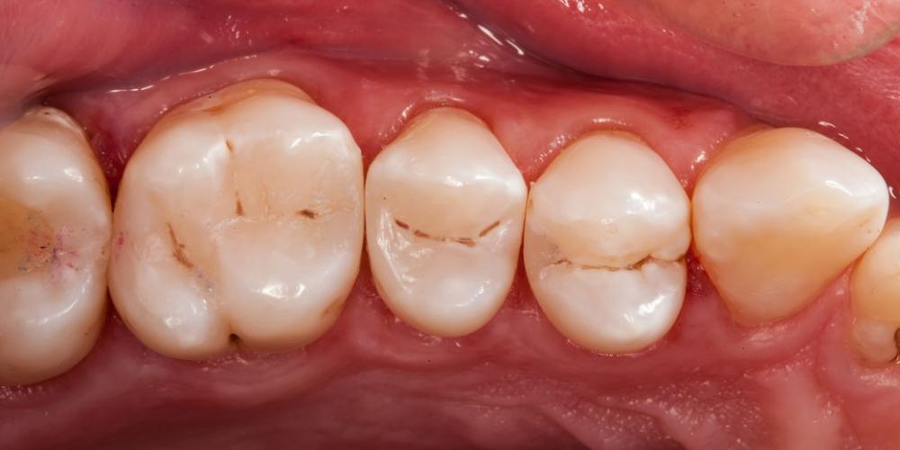Фото после лечения Лечение кариеса (беспокоило застревание пищи между зубами)