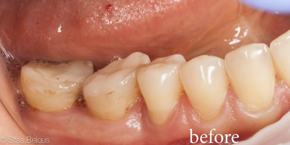 Керамические вкладки на жевательные зубы