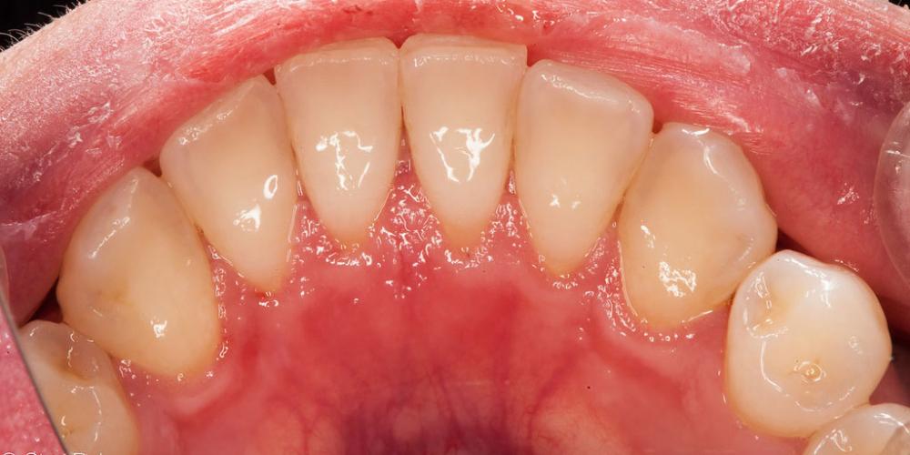 Результат профессиональной чистки зубов