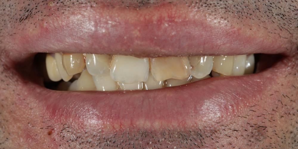 Исправление неровности зубного ряда и дисколорита при помощи 4-х керамических виниров