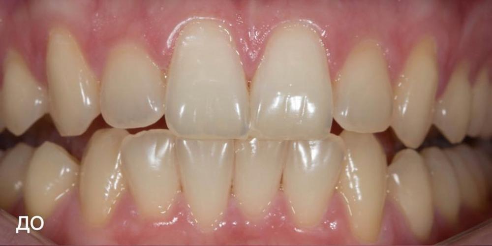 Фото до отбеливания зубов ZOOM 4. Фотографии отбеливания зубов по технологии ZOOM-4