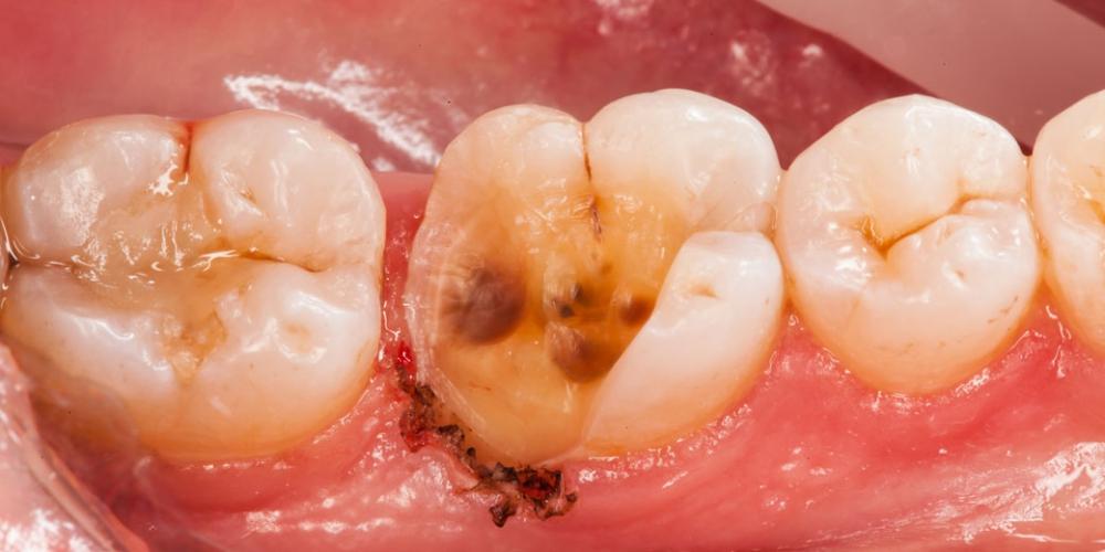 Фото до лечения Восстановление разрушенного зуба керамической вкладкой