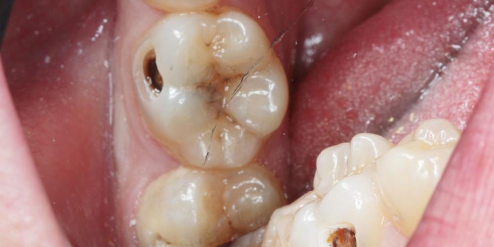 Лечим кариес на жевательном зубе