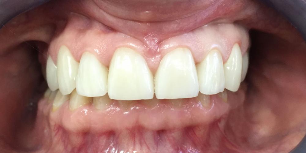 Восстановление эстетики передних зубов керамическими винирами