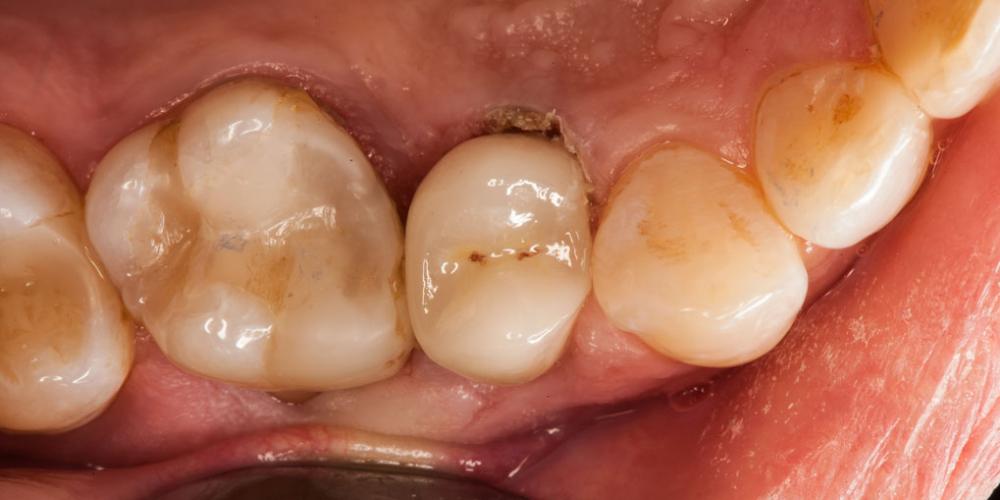 Скол депульпированного зуба (без нерва)
