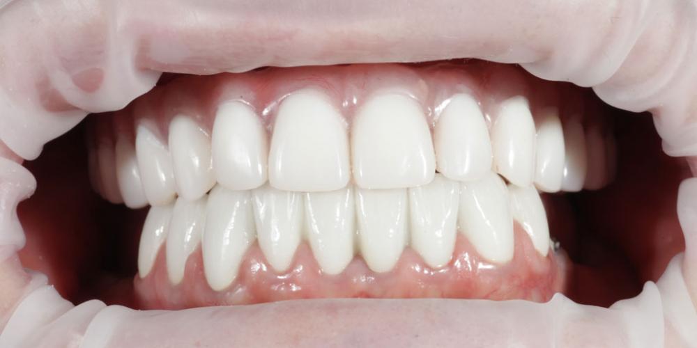 Комплексная реабилитация улыбки дентальными имплантами на верхней челюсти