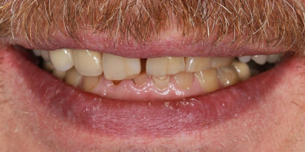 До лечения. Тотальная стоматологическая реабилитация пациента: 12 имплантов + 28 виниров