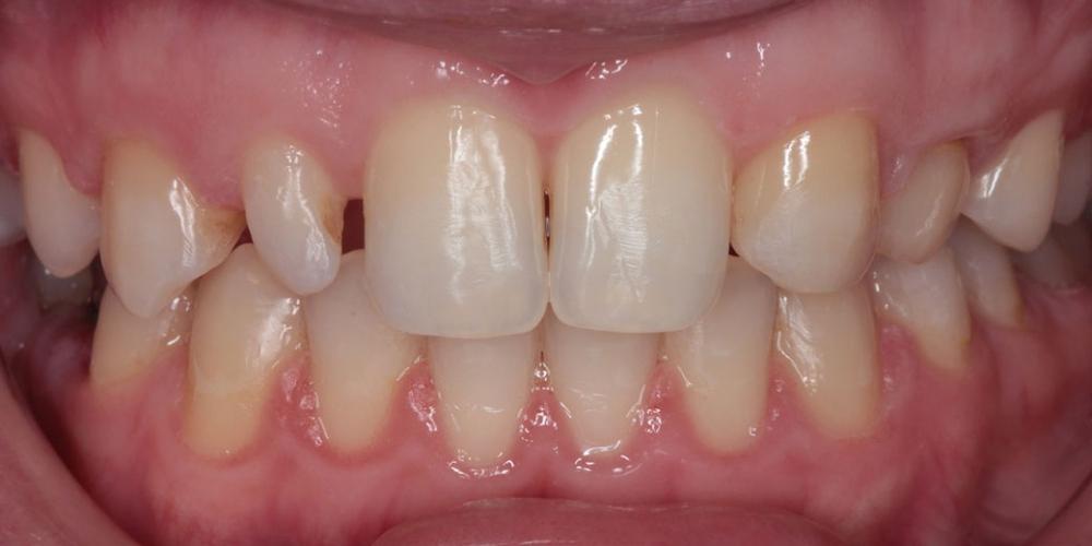 Шипковидный зуб в зоне улыбки, исправление винирами фото до