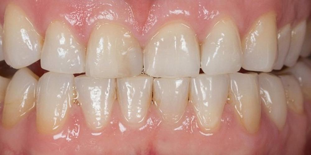 Фотография до отбеливания зубов. Отбеливания зубов холодным светом SmartBleach