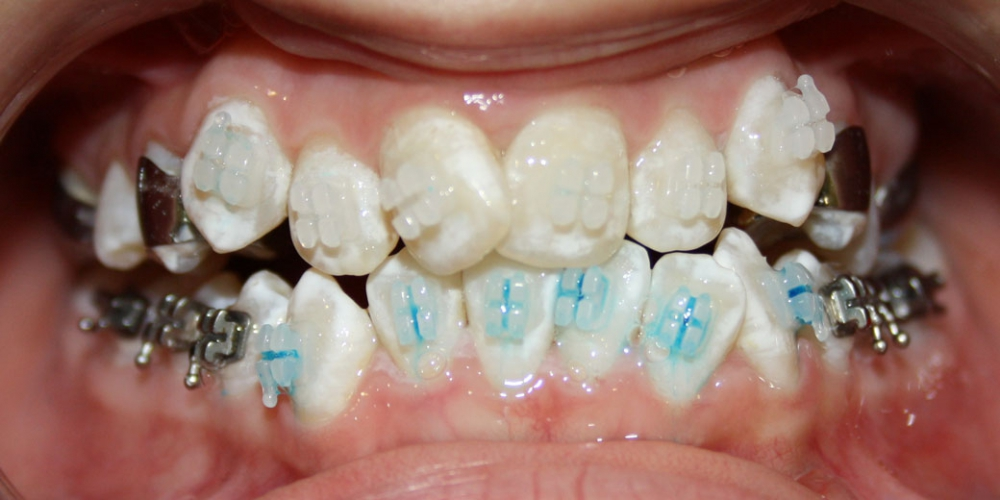 Ситуация до исправления прикуса Исправление прикуса зубов у ребенка 12 лет