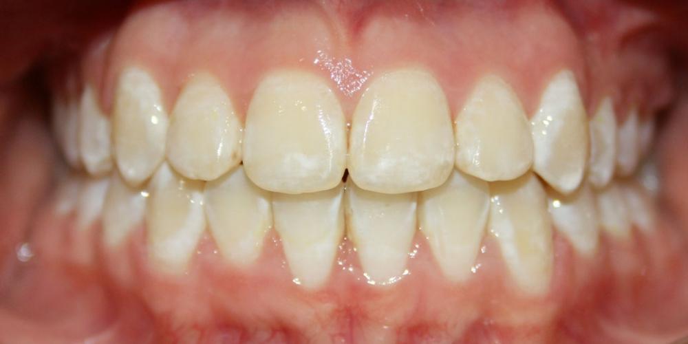 Фото после снятия брекетов после 1 г. 8 мес. Исправление прикуса зубов у ребенка 12 лет