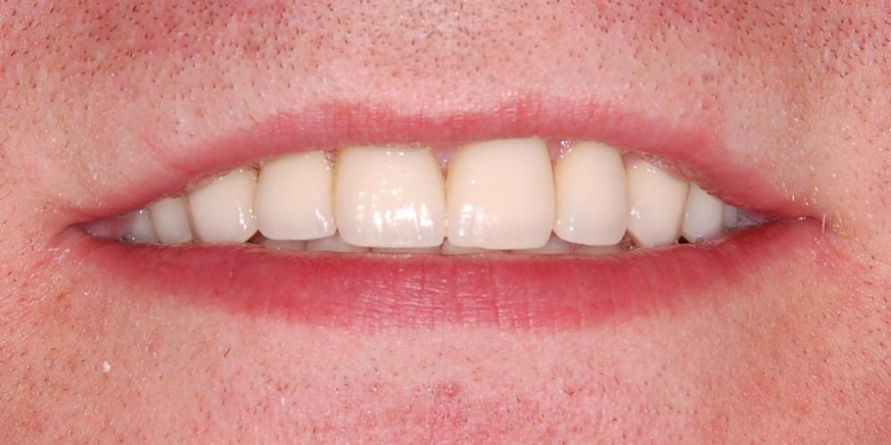 Окончательный вид новой улыбки. Восстановление зоны улыбки винирами empress e-max