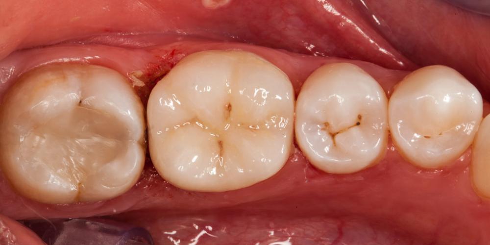 Восстановление отколотого зуба полукоронкой