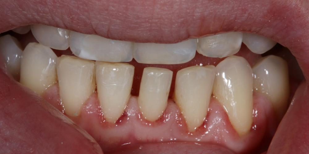 Терапевтический винир, микродентия зуба