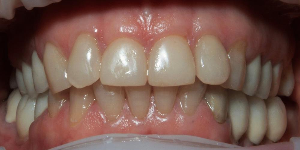 Установка керамических виниров на зубы, пациентке 54 года