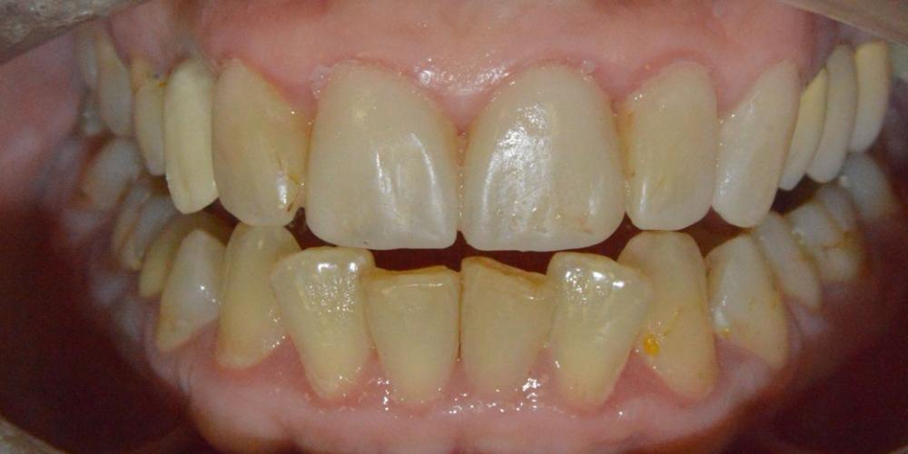 Протезирование передних зубов керамическими винирами Емах фото до