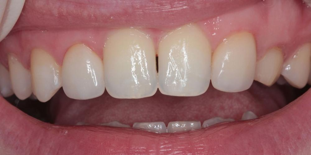 Шипковидный зуб в зоне улыбки, исправление винирами фото после имплантации