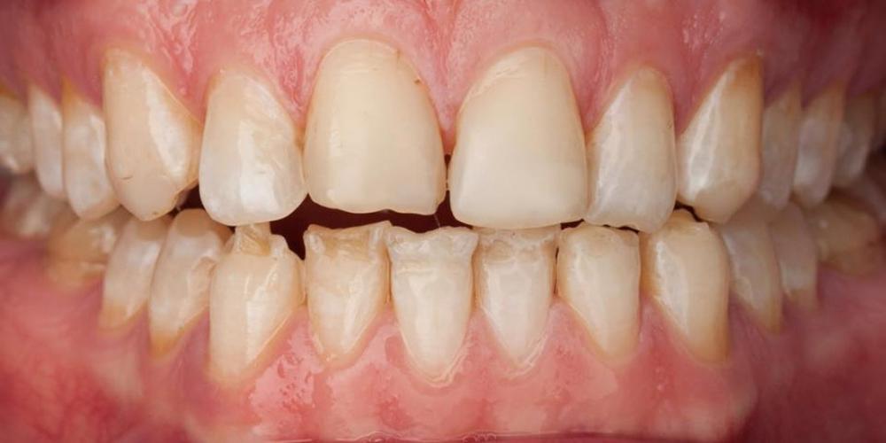 Фотография до установки виниров. Супертонкие керамические виниры на передние зубы